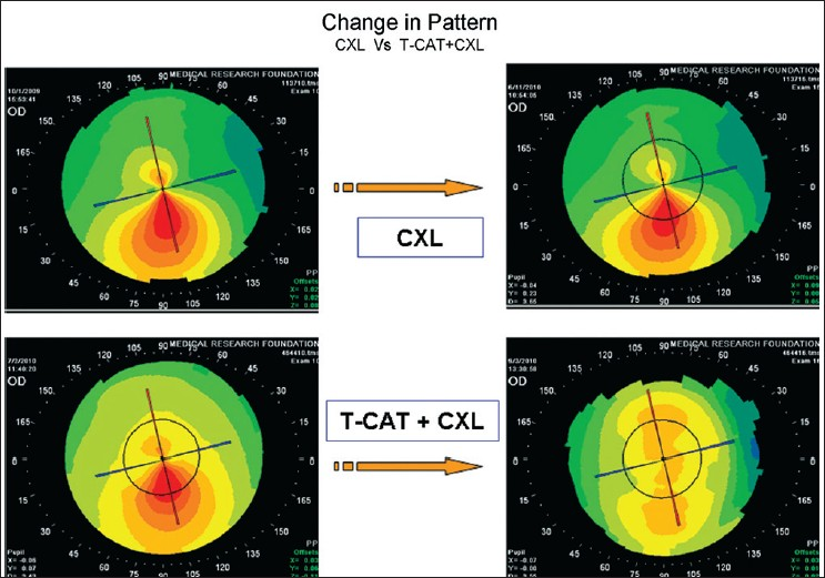Figure 3: Pre-operative and 6 months post-operative corneal topography of two topographically similar eyes, one of which underwent collagen cross linking (CXL) alone and the other T-customized ablation treatment + CXL