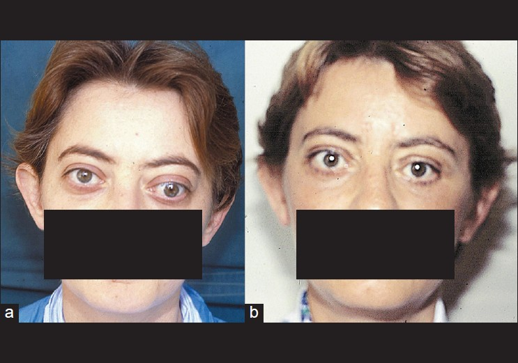 Results Of Diplopia And Strabismus In Patients With Severe Thyroid