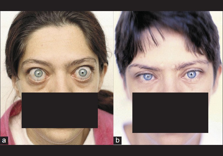 results of diplopia and strabismus in patients with severe thyroid ophthalmopathy after orbital decompression roncevic r savkovic z roncevic d indian j