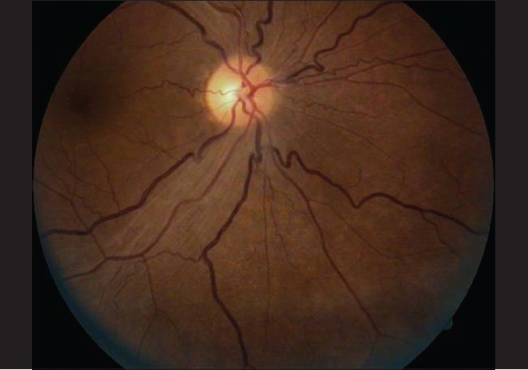 Figure 5: Right Eye Fundus picture showing reduced disc edema