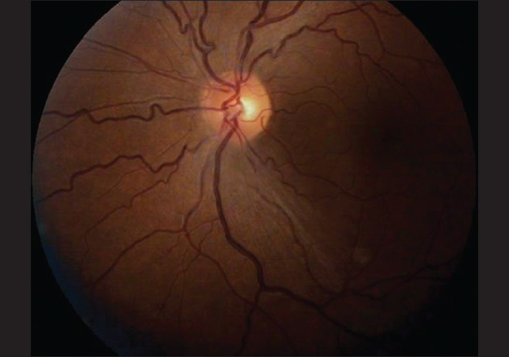 Figure 6: Left Eye Fundus picture showing reduced disc edema