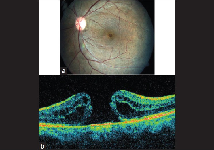 Repeat gas insufflation for successful closure of idiopathic macular
