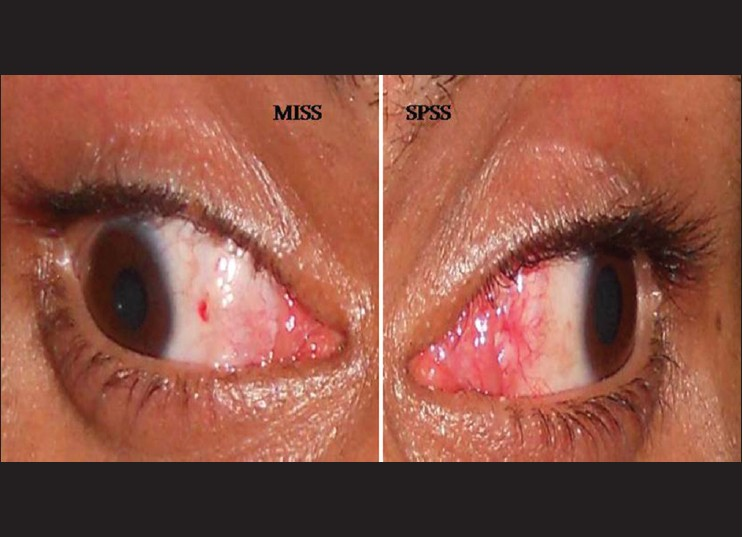 Minimally Invasive Strabismus Surgery Versus Paralimbal Approach A
