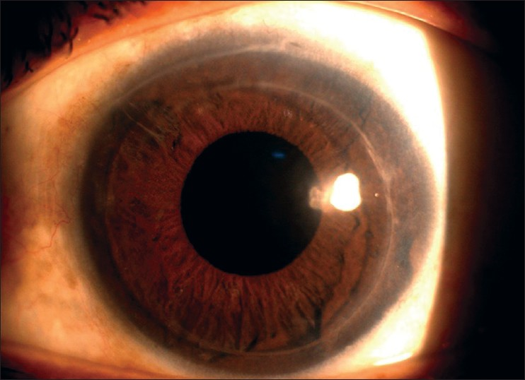 teaching plan hyphema Before, during and after your cataract surgery bleeding in the front of the eye (hyphema) bursting (rupture) of the capsule and loss of fluid (vitreous bc care card or proof of substitute medical insurance plan if you do not have these.