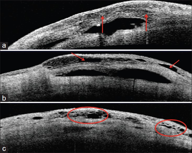 Figure 3: (a-c) Representative AS-OCT images of eyes with Multiform Reflectivity, showing multiple internal layers, as indicated by the two arrows (3a), subconjunctival separation, as indicated by the two arrows (3b) and presence of microcysts, as indicated by the circles (3c)