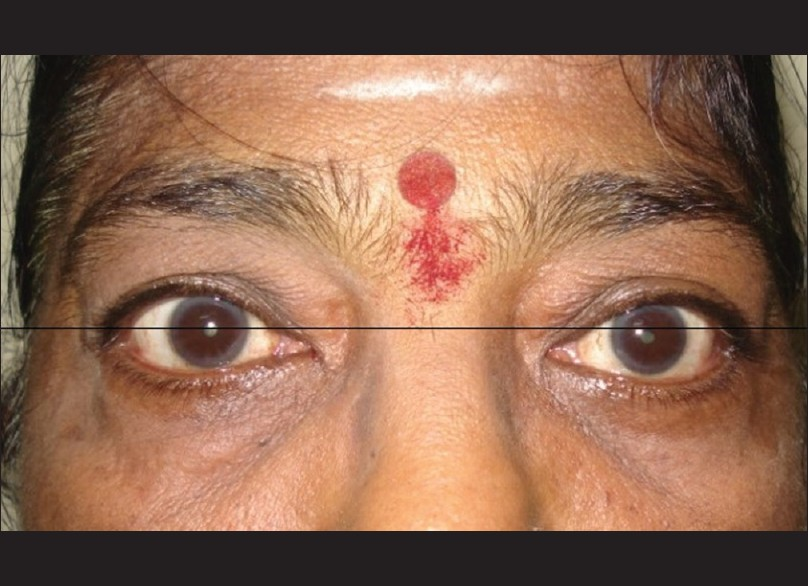 Figure 1: Pre-operative picture of the 62 year female patient showing downward displacement of left globe