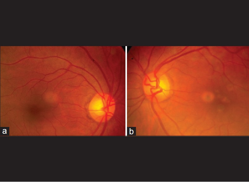 Figure 2: Pre operative fundus photographs of the patient. Note the dilated retinal veins in the left eye