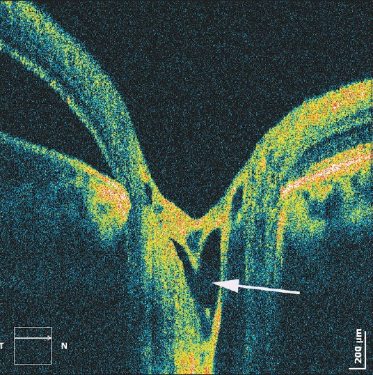 Figure 5: Optic disc appearance in a patient with optic pit associated maculopathy. The arrow indicates a hyporeflective area, possibly representing fluid accumulated below the optic nerve head