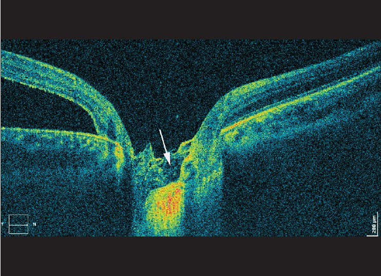 Figure 6: Optic disc appearance in a patient with optic pit associated maculopathy. The arrow indicates hyperreflective, porous tissue visible in the excavation of the optic disc