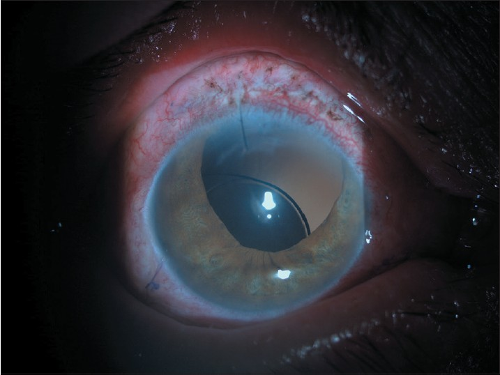 Figure 4: Intraocular lense decentralization was observed in one eye (Acriva UD 613) 2 months after surgery due to its haptic configuration