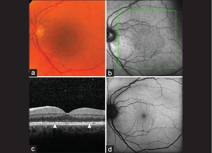 Figure 1 Left Fundus Images At Day Postblunt Trauma To The Eye A Color Photograph B Infrared Confocal Scanning Laser Ophthalmoscope