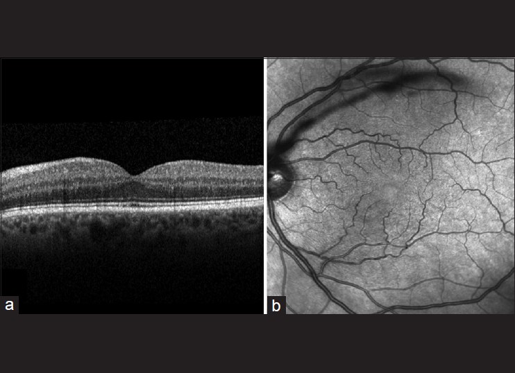 Figure 2: Left fundus images at day 30. (a) Optical coherence tomography demonstrates restoration of normal outer retinal architecture. The outer segments layer is now clearly defined. (b) Infrared confocal scanning laser ophthalmoscope fundus image reveals resolution of the infrared hypo-reflectance