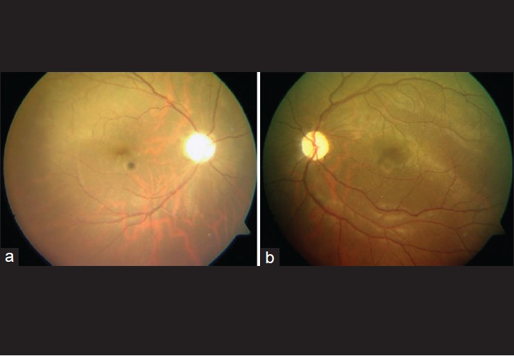 Figure 4 : (a) Fundus photograph of the right eye showing Glaucomatous Optic Atrophy (b) Fundus photograph of the left eye showing a cup disc ratio of 0.75 with bipolar thinning with pallor of the neuro-retinal rim