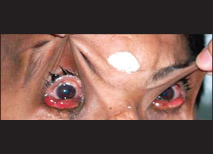 Figure 5: Photograph showing redundant skin of the upper lids which is hyperextensible