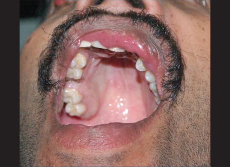 Figure 6: Photograph showing hypodontia along with high arched palate