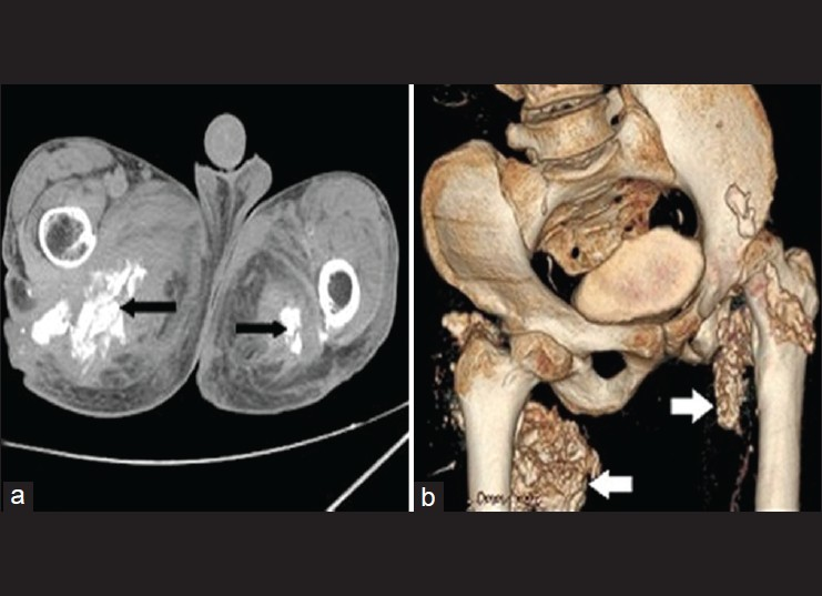 Figure 10: (a) Axial CT pelvis and (b) volume-rendering technique (VRT) image showing extensive nodular calcifications (as indicated by arrows) surrounding the hip joints