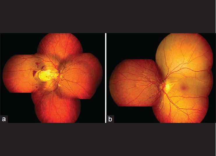Figure 2: Color montage photographs of the ocular fundi. (a) Right fundus showing angiod streaks with subretinal hemorrhage and neovascular membrane. (b) Left fundus showing the angiod streaks