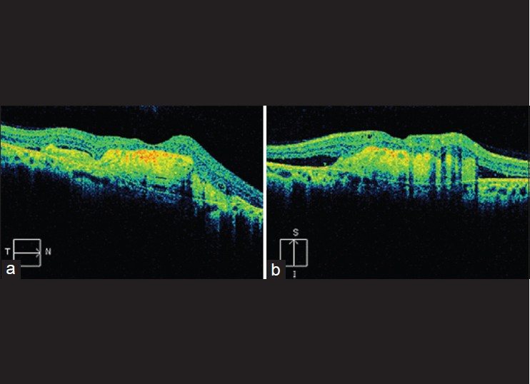 Figure 4: (a and b) Spectral domain optical coherence tomography (OCT) showing a big subretinal membrane and fluid in the macular region