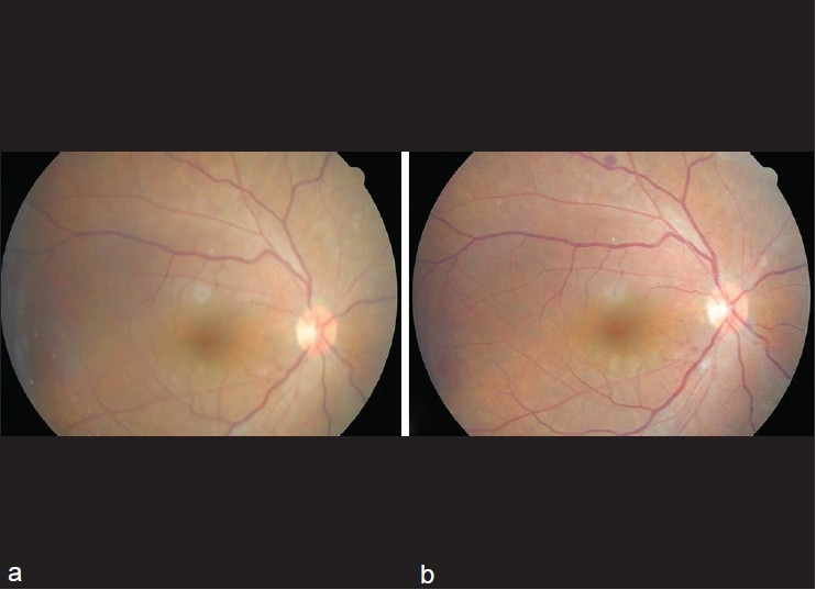 Figure 2: (a) Fundus photograph of right eye on postoperative day 11. The retinal vessels and the optic disc margin are well visualized through clear vitreous even though anterior segment inflammation coexist. (b) On 20 days after intense use of prednisolone acetate 1%, anterior segment inflammation improved and clearer view of the retina was presented