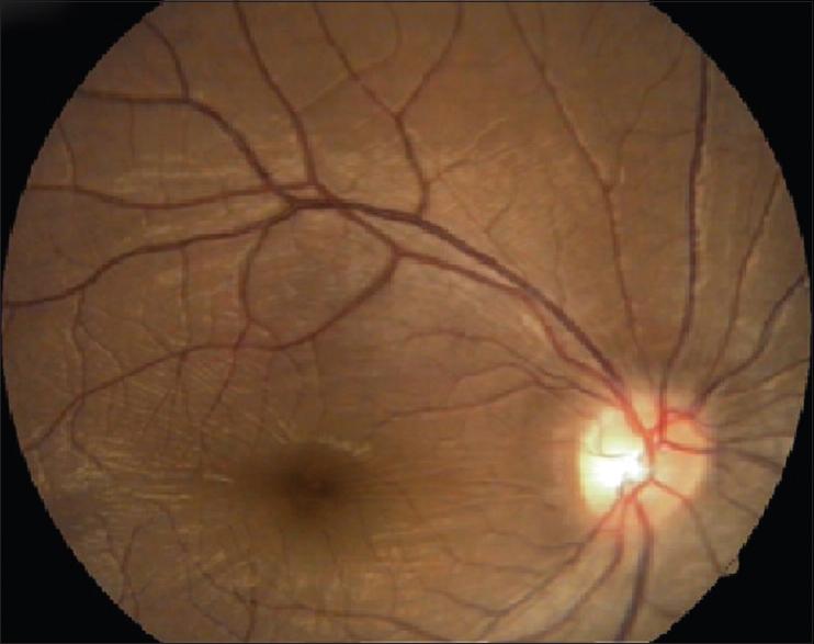 Progressive hemifacial atrophy with ciliary body atrophy and