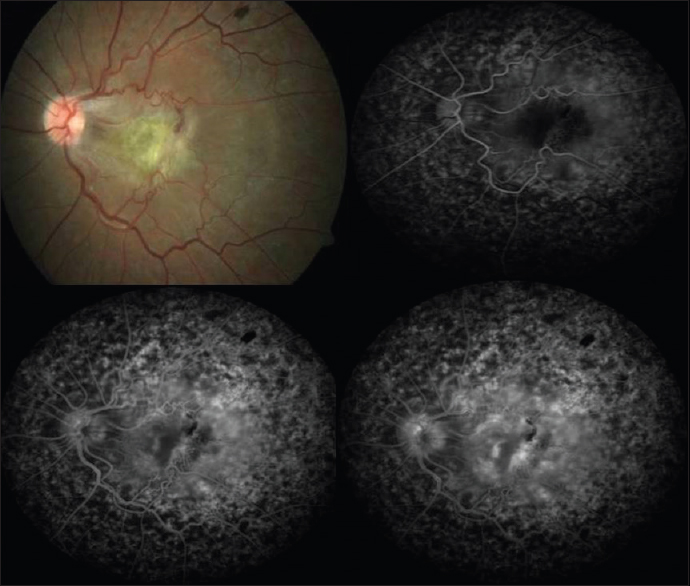 Figure 4 Colour Photograph And Fundus Fluorescein Angiography FFA Images Of Second Patient Showing The Epiretinal Membrane With Traction Hemorrhage