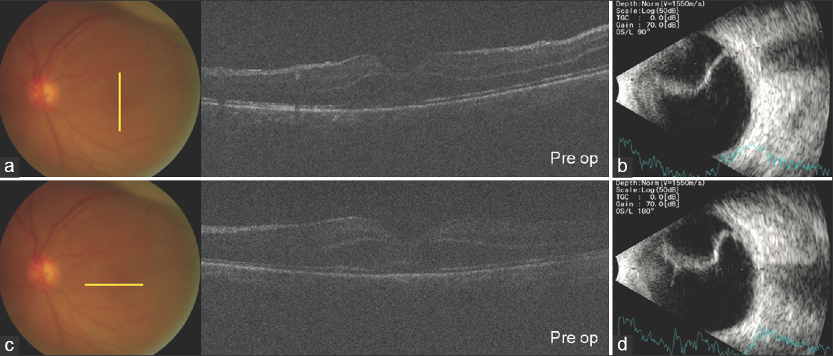 Figure 1: Preoperative fundus photograph, optical coherence tomography (a and c), and B-scan ultrasonography (b and d) superior retinal detachment with vitreous haziness due to vitreous hemorrhage and cataract