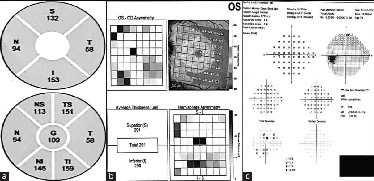diagnostic accuracy of posterior pole asymmetry analysis parameters of spectralis optical