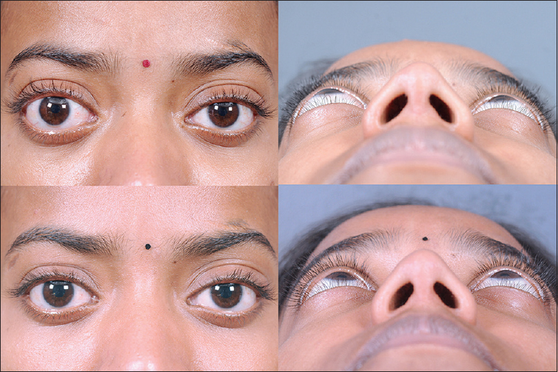 minimally invasive surgery for thyroid eye disease naik mn nair ag gupta a kamal s indian j ophthalmol
