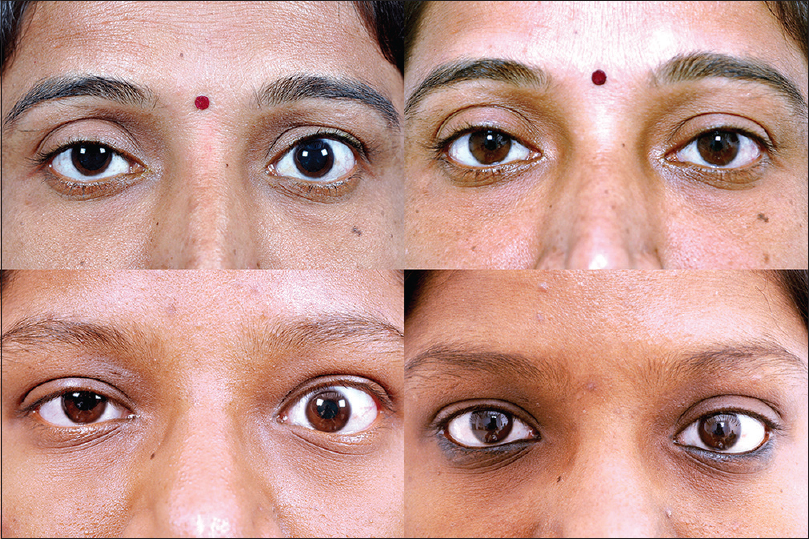 Minimally Invasive Surgery For Thyroid Eye Disease Naik Mn Nair