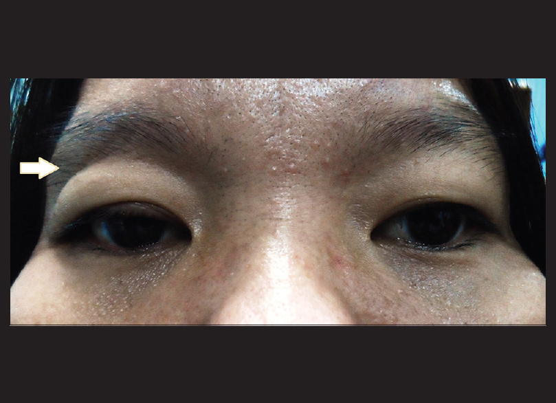 Figure 1: Fullness of the right eye upper lid