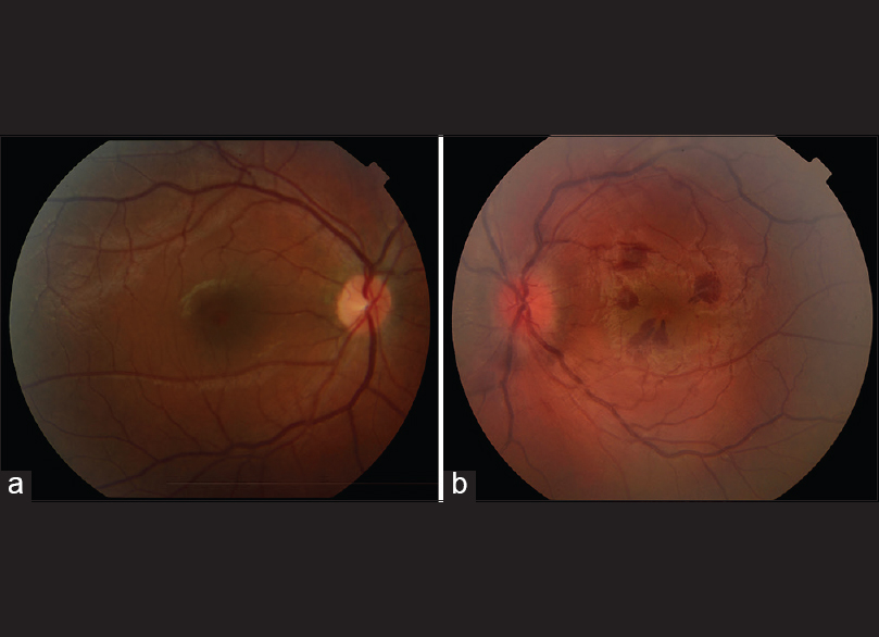 Figure 1: (a) Fundus photography of the normal right eye at the initial presentation (b) fundus photography of the left eye at the initial presentation. Note mildly edematous optic disc, dilated and tortuous retinal veins, and preretinal hemorrhages in the macula