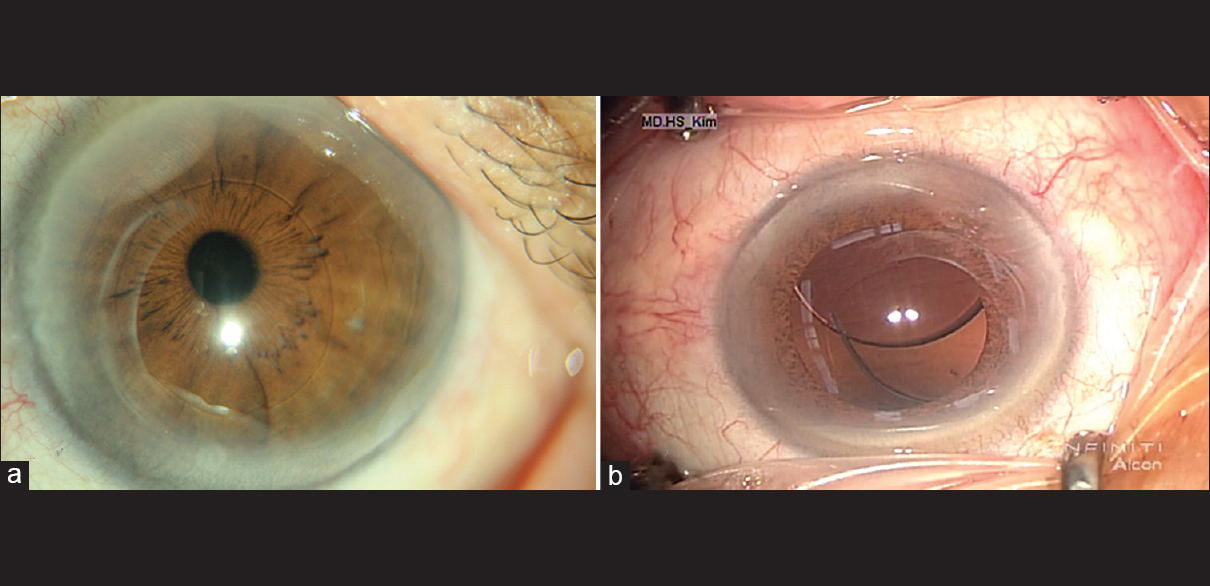 90d977fab08c Figure 1  (a) The protruded empty capsular bag showing continuous  curvilinear capsulorhexis. (b) Downward dislocation of the intraocular lens  in the ...