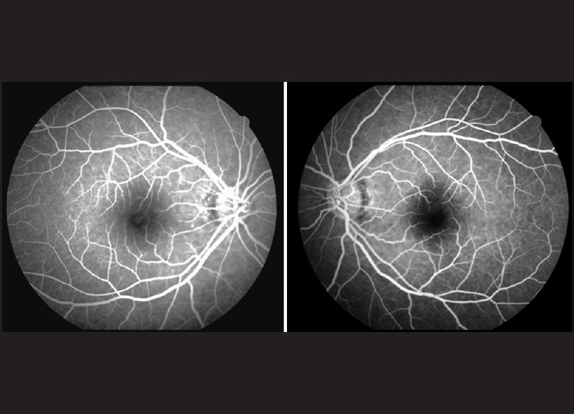 Figure 2: Fluorescein angiography shows hyperfluorescence in the right fovea, left eye is normal