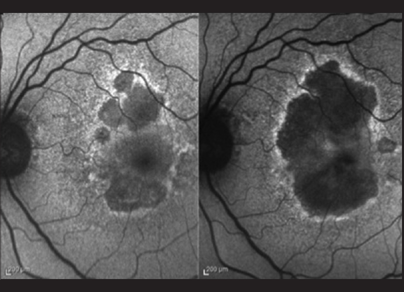 Figure 5: Geographic retinal pigment epithelium atrophy extension in 2 years (from left to right). Hyperautofluorescence at the atrophy margins indicates the direction in which it will extend