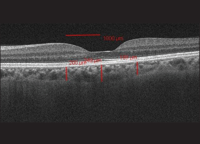 Figure 1: The choroidal thickness measurements at central fovea and 1000 μaway from the fovea in the nasal and temporal regions