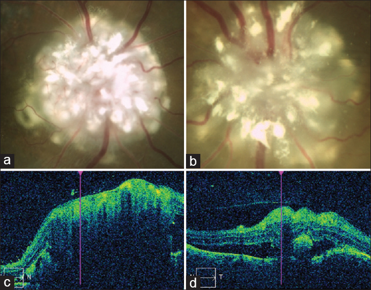 Figure 3: Color photographs of the optic disk of right (a) and left (b) eye reveal intrinsic calcification and vasculature. Optical coherence tomography scan reveals high reflectivity, strong shadowing (c) and subfoveal fluid (d) but lacking the