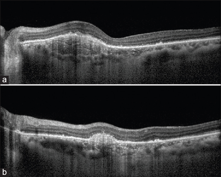 Figure 4: Enhanced depth imaging of the left eye (a) showing complete resolution of the subretinal fluid 2 months after photodynamic therapy with gradual involution of the neovascular membrane (b). Also noted focal areas of retinal pigment epithelium thinning with loss of overlying photoreceptor layers