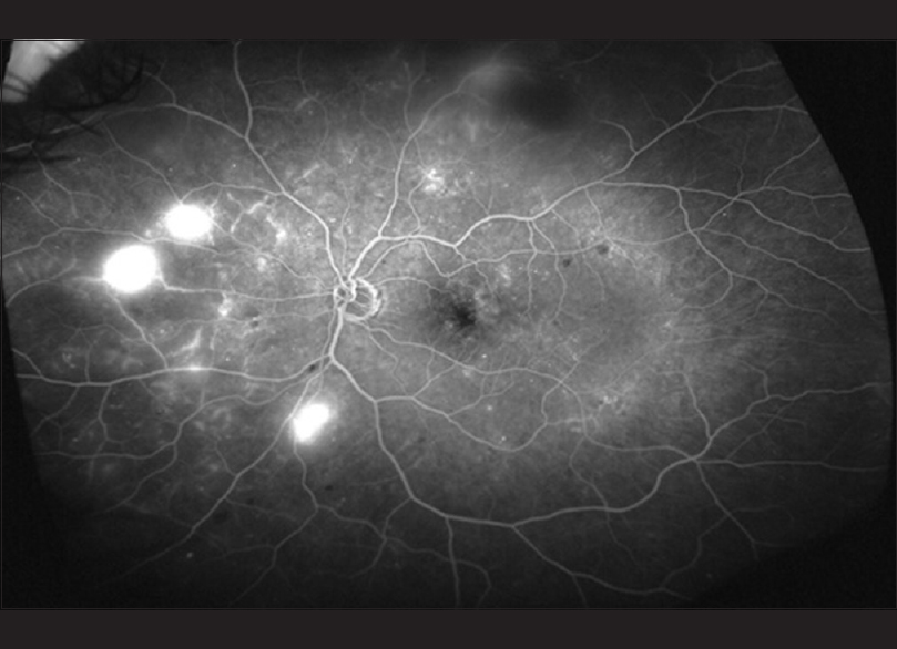 Figure 7: An ultra-widefield fluorescein angiogram of the left eye of a 54-year-old diabetic patient. The images show leakage in the macular area, peripheral areas of nonperfusion, and neovascularization nasally