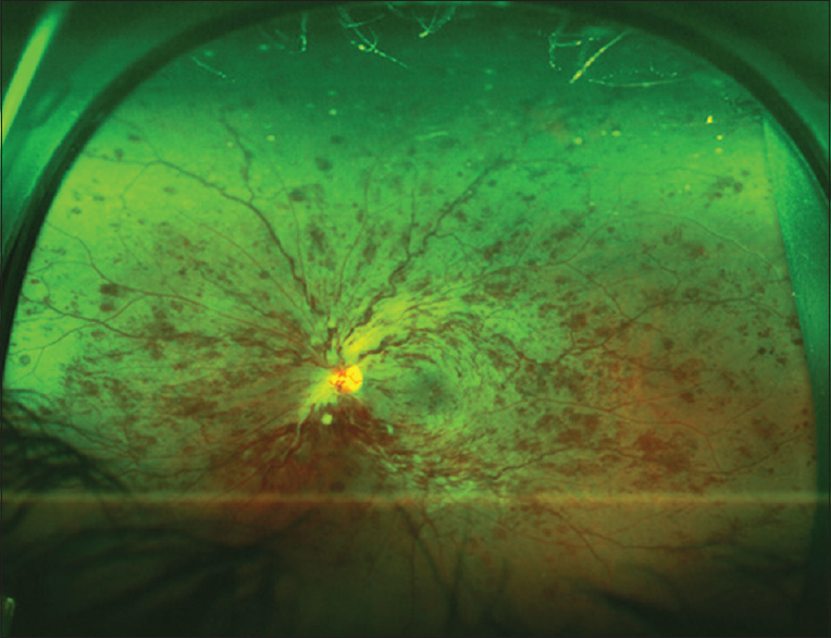 Figure 9: An ultra-widefield color fundus photo of the left eye of a 60-year-old patient with central retinal vein occlusion. The image shows intraretinal hemorrhages in all retinal quadrants