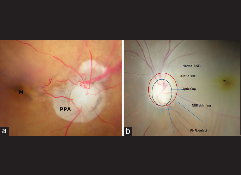 Identification Of Glaucomatous Optic Nerve Head Changes In Indian