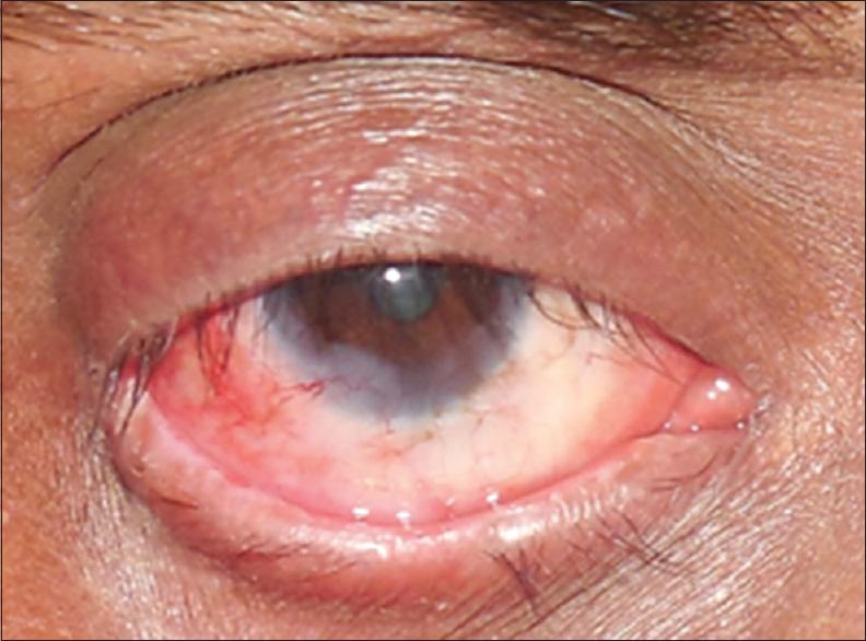 ocular surface squamous neoplasia pdf