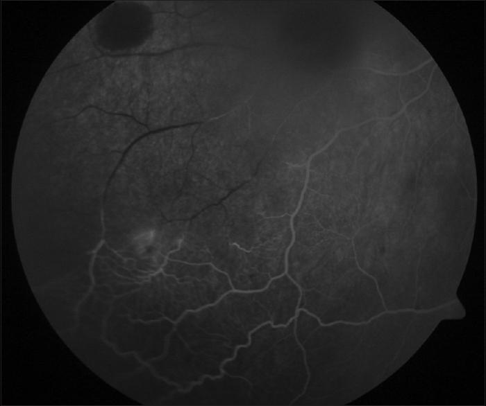 Stupendous Unusual Presentation Of Ocular Trauma In Sickle Cell Trait Wiring Cloud Funidienstapotheekhoekschewaardnl
