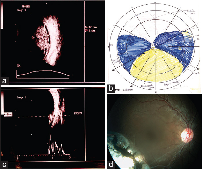 Figure 1: Clinical findings in the sibling showing bilateral retinoblastoma (a) Ultrasound B scan of the left eye showing large tumor in visit 1 (b) Fundus drawing of the left eye showing tumor coded by yellow color (c) Ultrasound B scan of the right eye showing tumor. (d) Post treatment regressed tumor in the right eye at last follow up (7 years follow-.up)