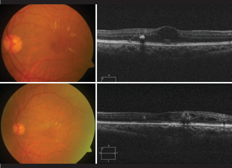 cystoid macular edema treatment guidelines