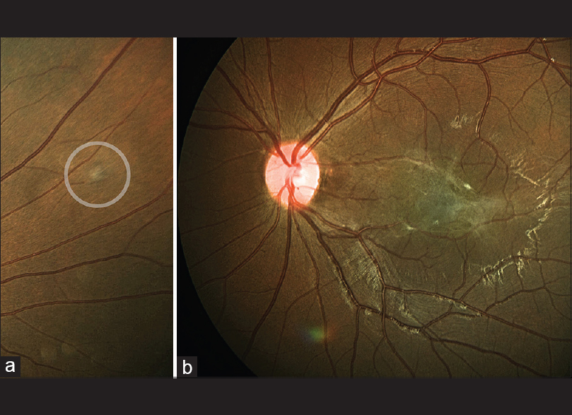 Figure 3: Presumed retinal astrocytic proliferation (circle) in superonasal quadrant of right eye (a), and closer view of combined hamartoma of retina and retinal epithelium in left eye (b)