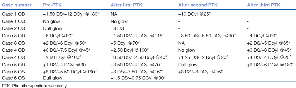Table 2:  Manifest  refraction  before  first  phototherapeutic  keratectomy  and  after  phototherapeutic  keratectomy  procedures