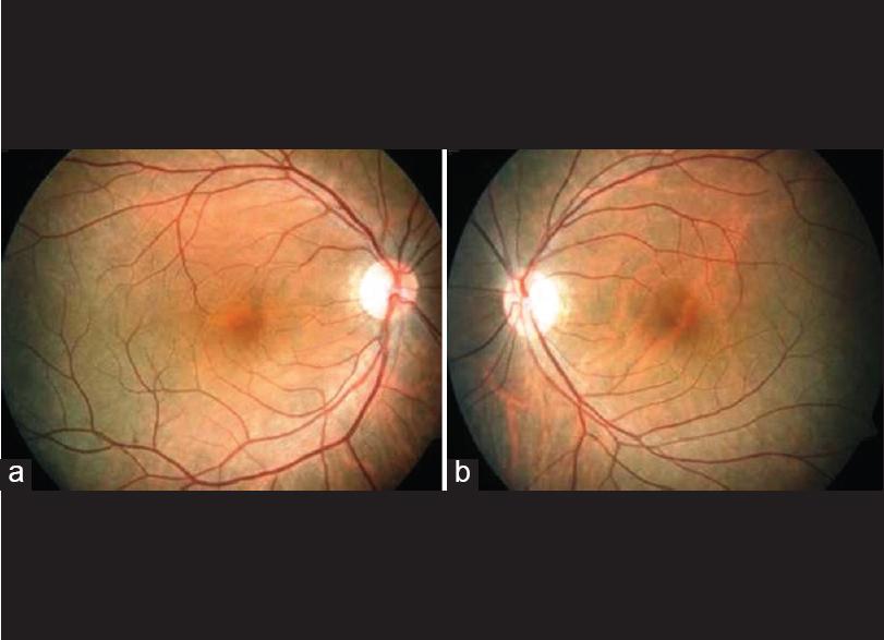 Lightning Injury Of Posterior Segment Of The Eye Rishi E Indu V P