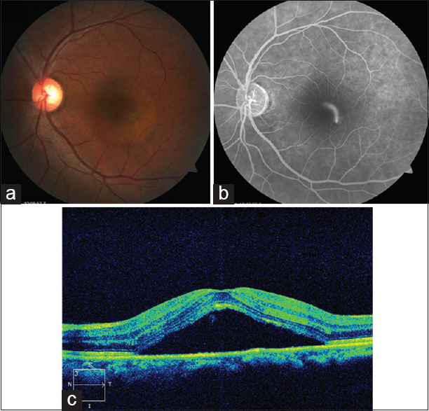 "Figure 2: (a) Fundus photograph reveals a serous elevation of the retina in the macular area. (b) Fluorescein angiography shows a ""smokestack"" pattern leakage. (c) Optical coherence tomography shows a serous macular detachment"