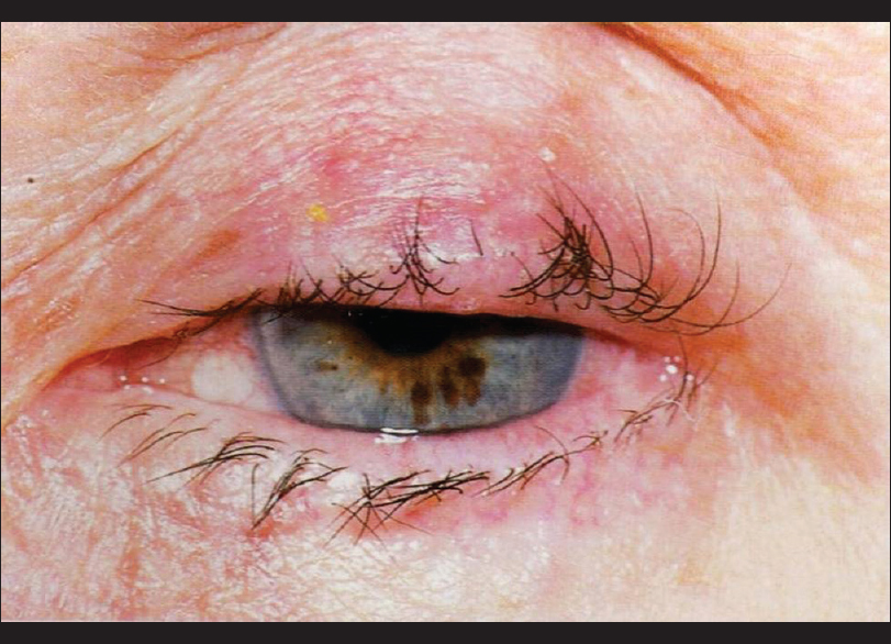Pathology Of Eyelid Tumors Peer J Indian J Ophthalmol