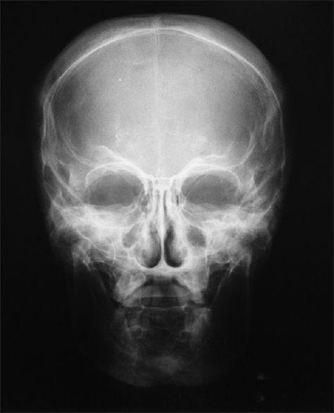 Figure 7: Anteroposterior view skull X-ray: Ghost like appearance (alien look) with cranial hyperostosis and broadening of mandible